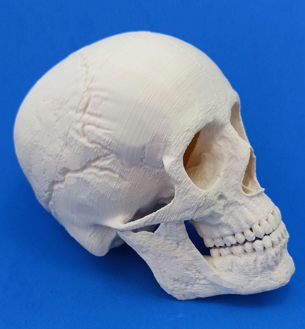 You are currently viewing A impressão 3D na área médica